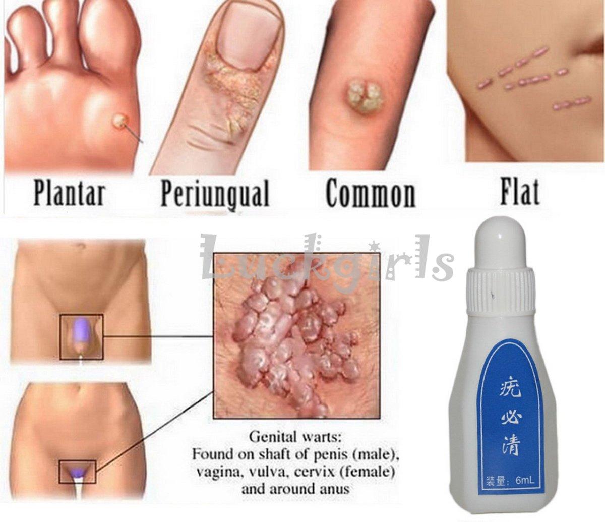 hpv wart removal paraziti intestinali ciclide