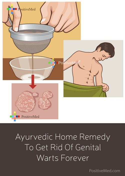 hpv warts home remedy