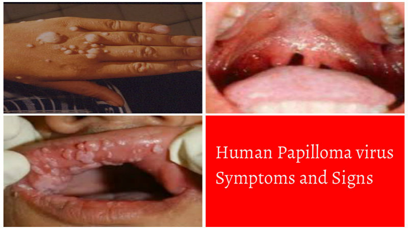 human papilloma symptoms