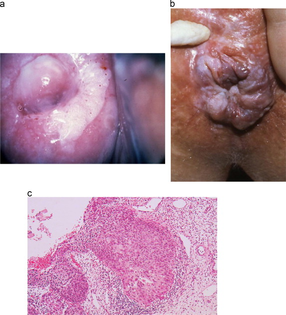 human papillomavirus infection in males