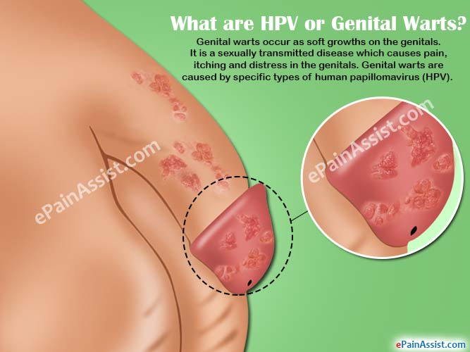 human papillomavirus infection treatments hpv causes mild dysplasia