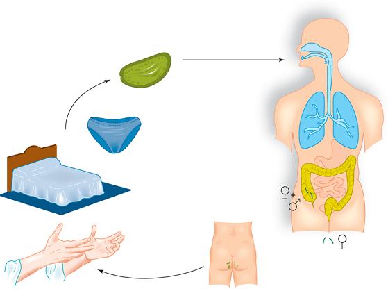papilloma nasal pathology outlines oxiuros como curarlo