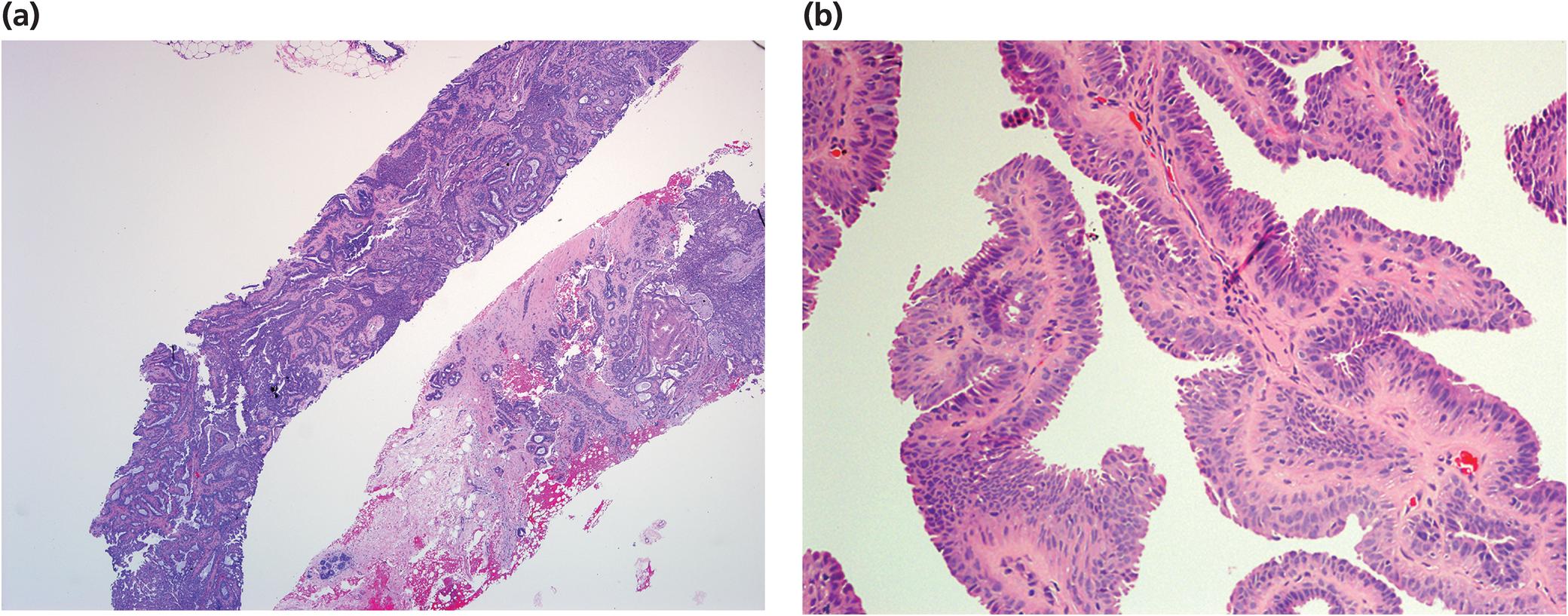 intraductal papilloma core biopsy kako se rijesiti hpv virus kod muskaraca