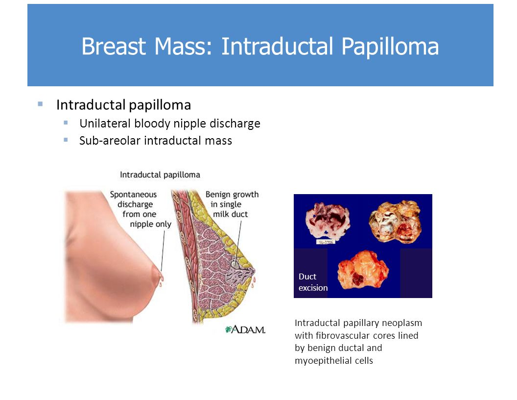 intraductal papilloma lump