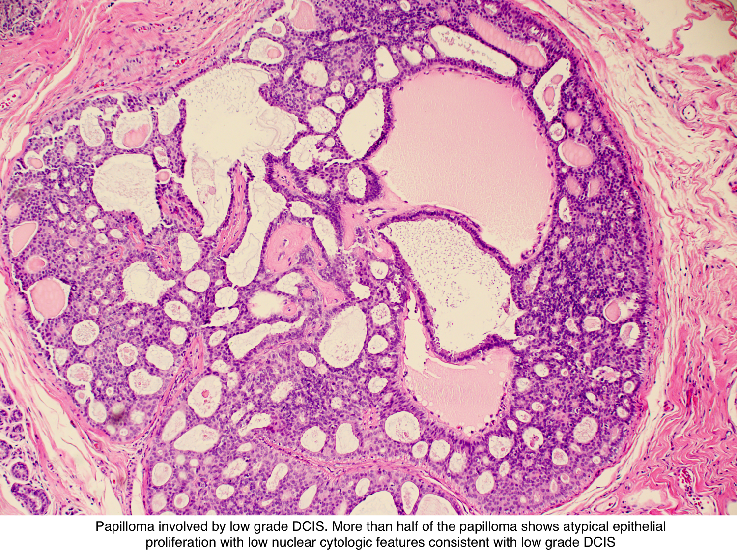 intraductal papilloma pathology outlines)