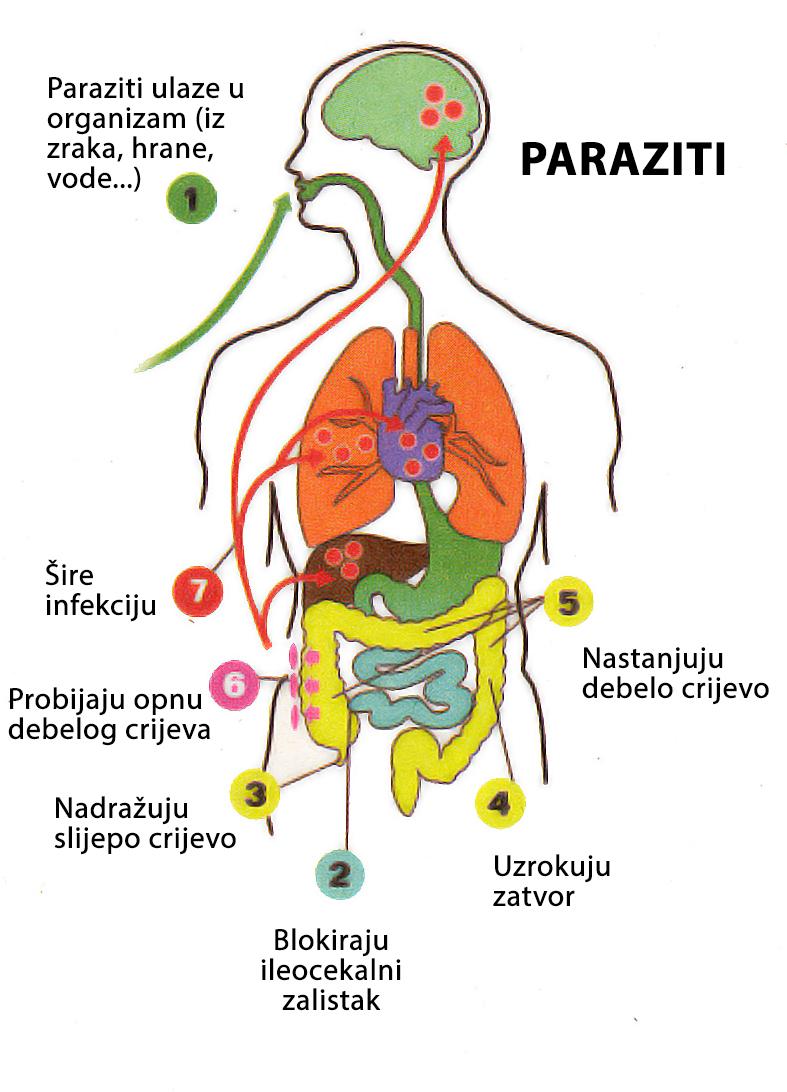kako unistiti parazite u organizmu neuroendocrine cancer foods to avoid