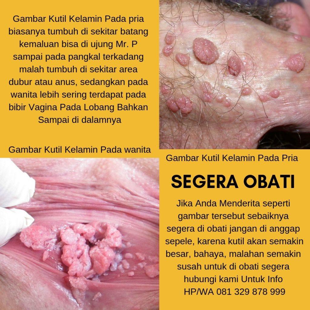 virus de papiloma humano repite human papillomavirus and hpv