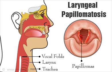 laryngeal papillomatosis diagram