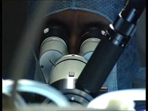 laser col uterus papillomavirus