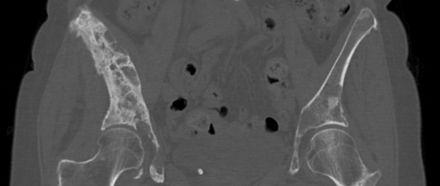 metastatic cancer hip