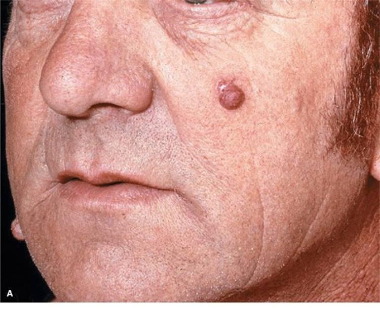 cancer de laringe sintomas iniciales