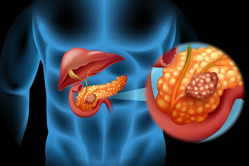 pancreatic cancer rare)