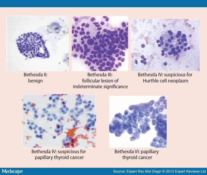 papillary thyroid cancer fna)
