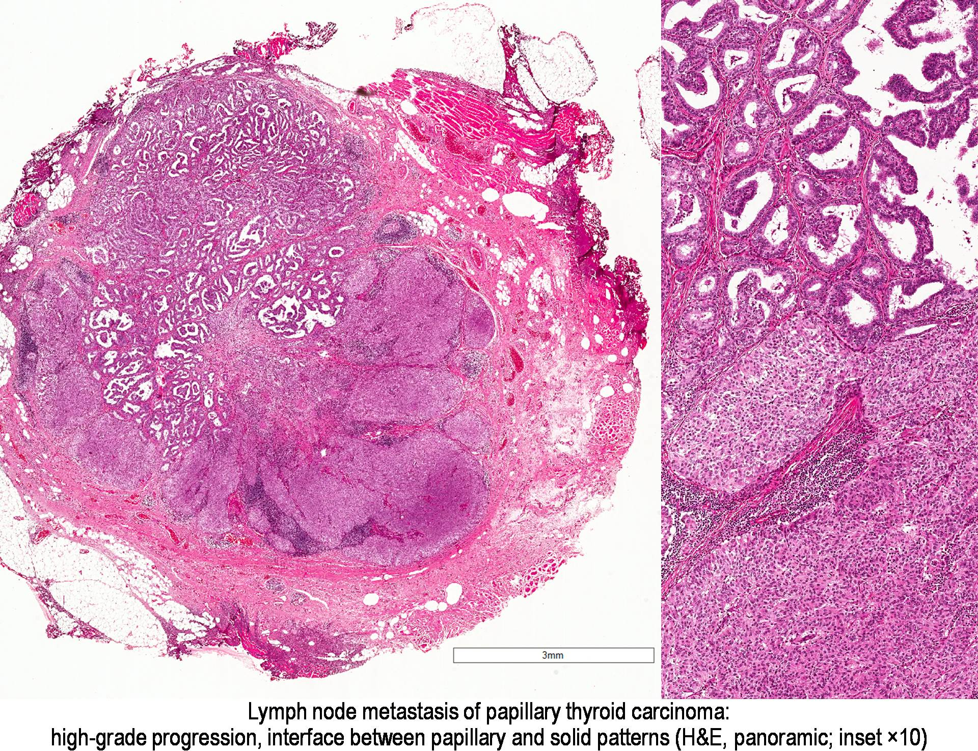 papillary thyroid cancer lymph node metastasis