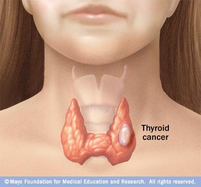 papillary thyroid cancer paraneoplastic syndrome