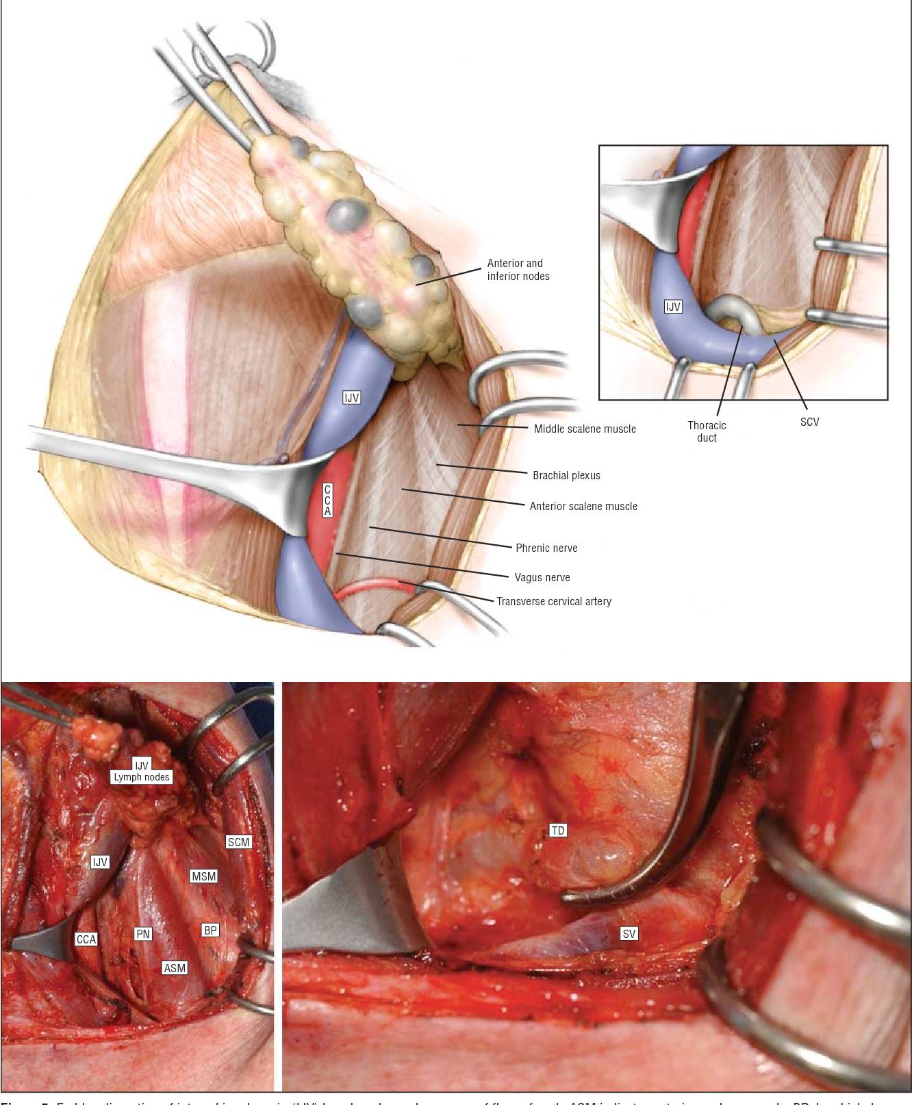 papillary thyroid carcinoma jugular)
