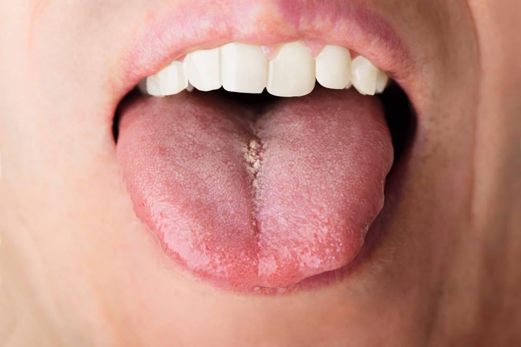 papillom entfernen mund