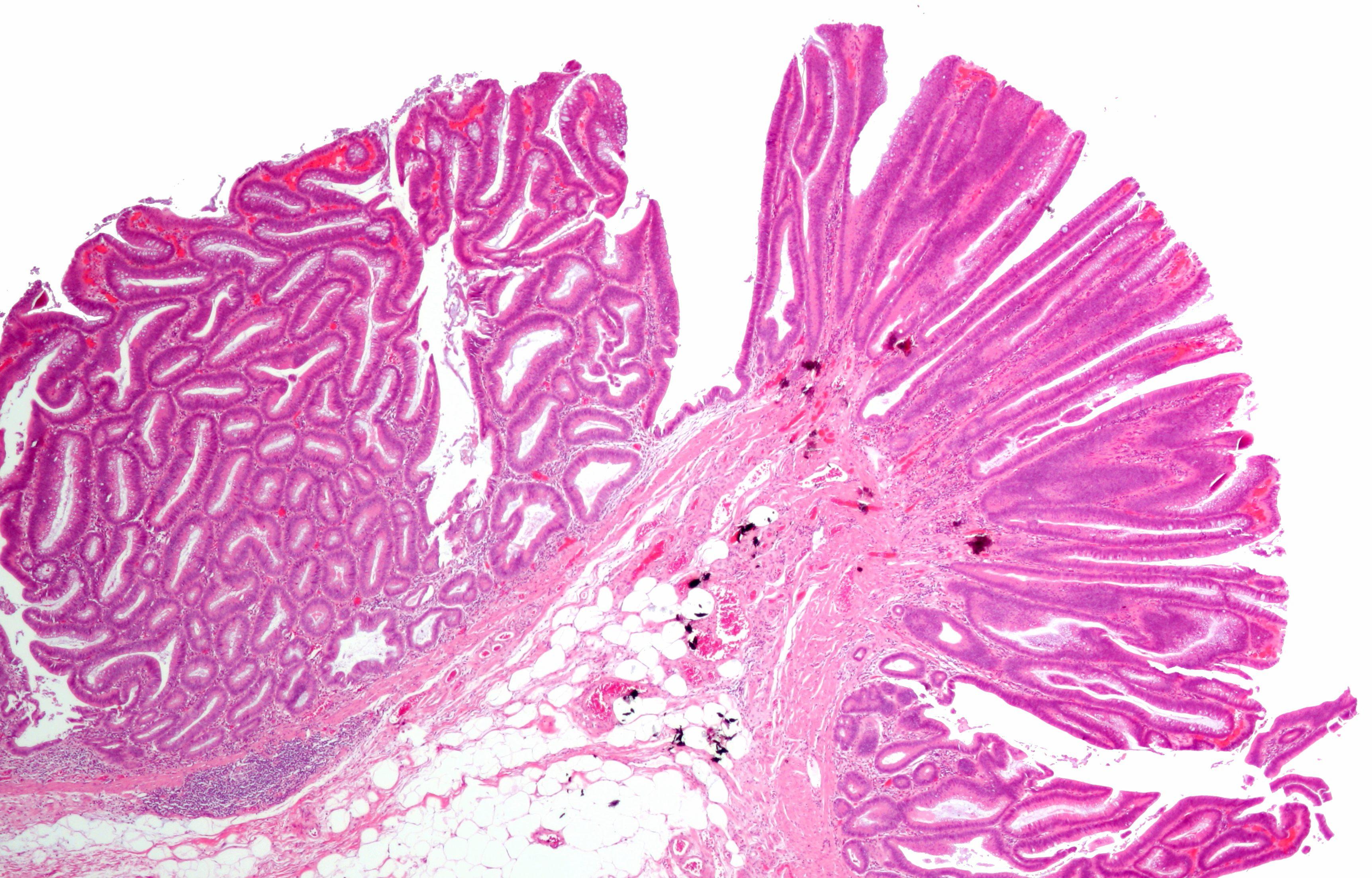 papilloma del colon)