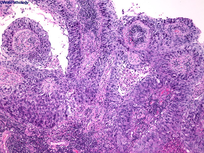 papilloma of transitional cell carcinoma