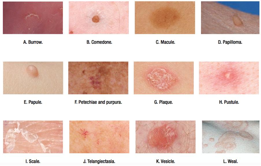 papilloma skin lesions