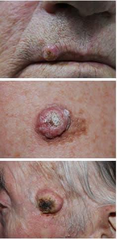 Tratamentul de fracție de 2 ASD psoriazis - kd-group.ro