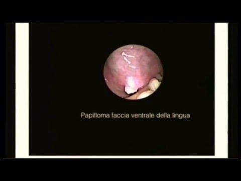 Microchirurgia Endoscopică