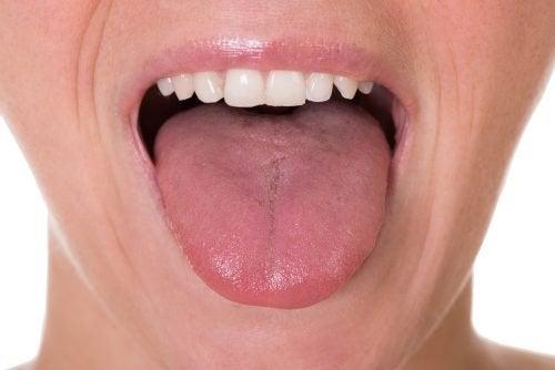 papilloma virus bocca lingua