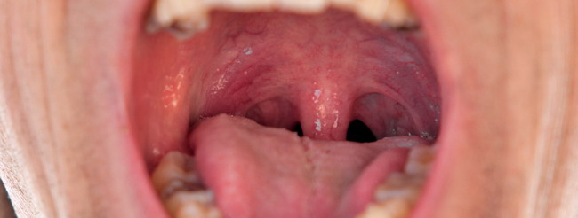 papilloma virus na boca