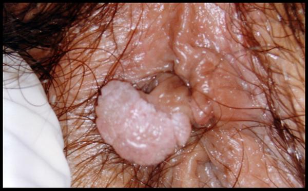 papilloma virus prurito e bruciore)