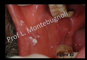 papilloma virus tonsilla)
