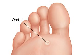 papilloma warts on feet)