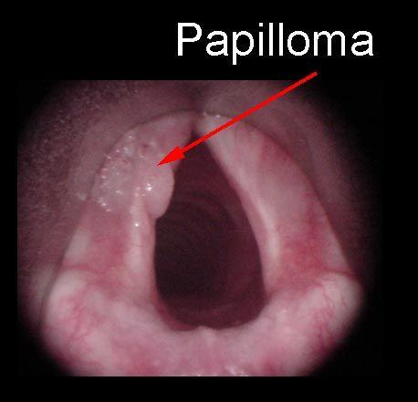 papillomas on voice box)