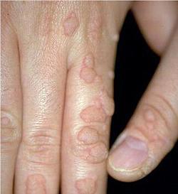 papillomavirus homme symptome)