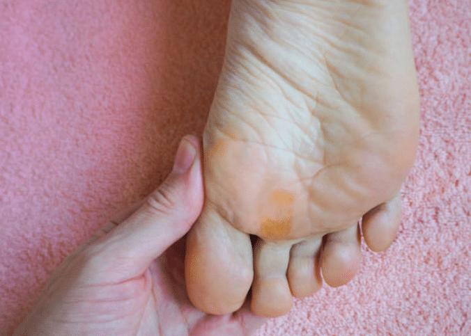 papillomavirus pied traitement)
