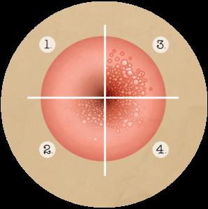 papillomavirus stade 1