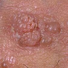cervical cancer effects on the body hpv cream treatment