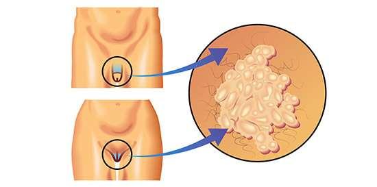 papiloma humano en hombres formas de contagio