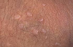 papiloma humano genital hombres)