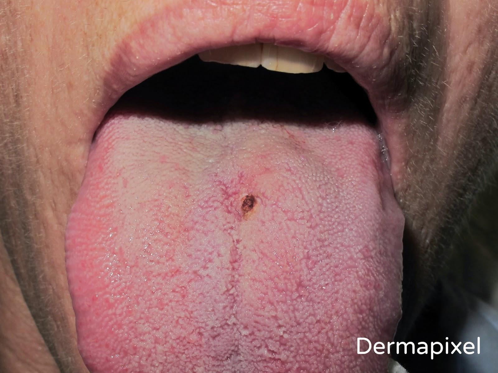 papiloma humano verrugas en la boca)