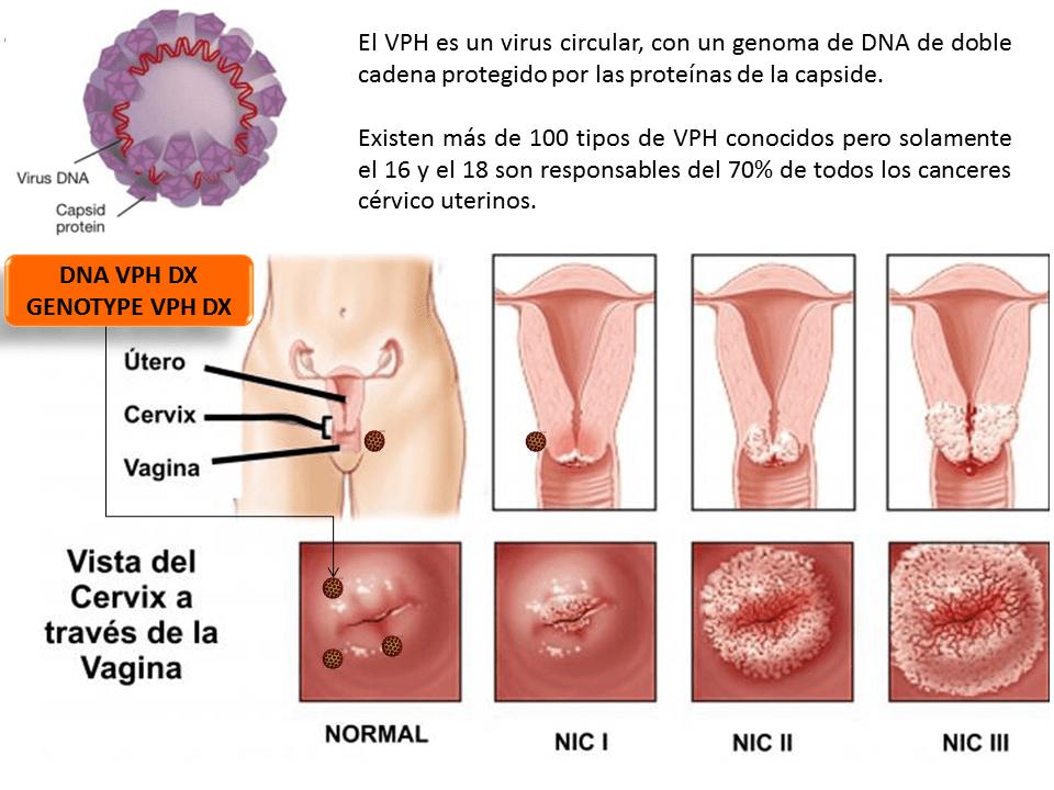 Infecţia cu HPV (human papilloma virus) la bărbaţi | Oana Clatici | kd-group.ro