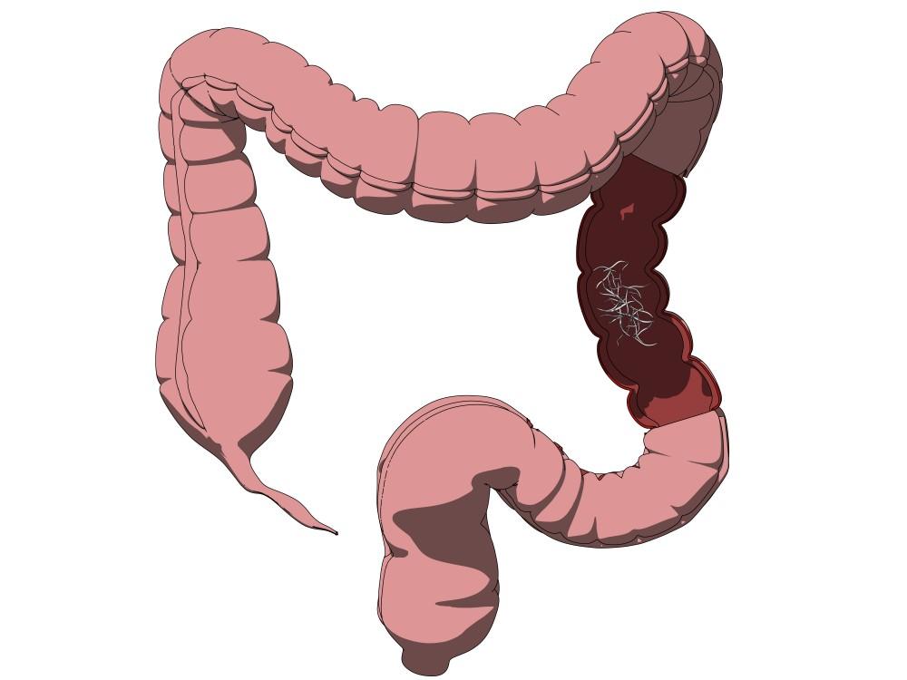 paraziti intestinali la vitei
