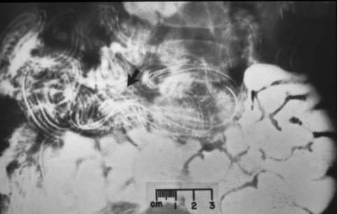 Salmoneloza kobile ,ako crvi izađu nakon helminta