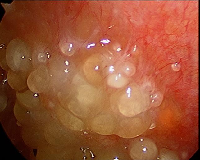 peritoneal cancer nodules