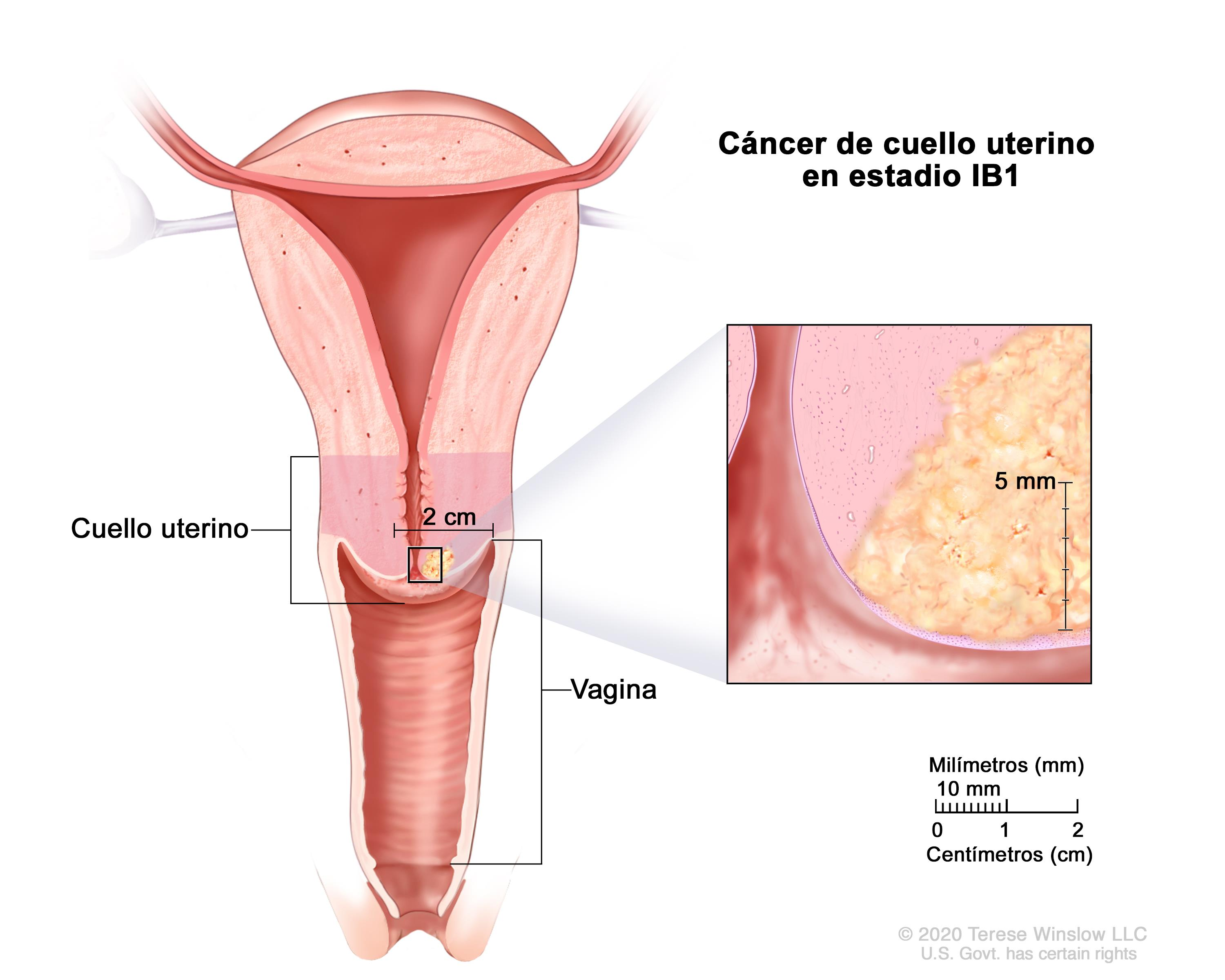que es cancer cervical)