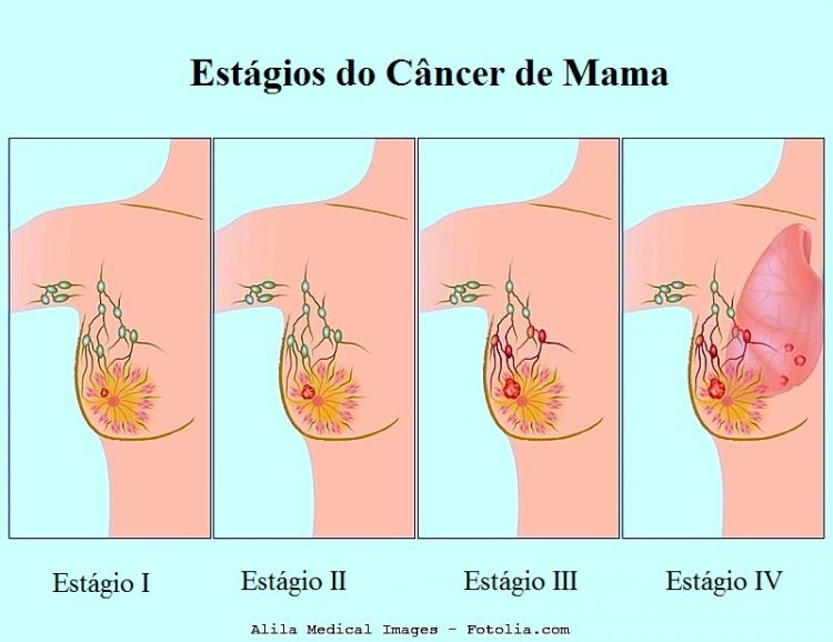 que es cancer invasivo
