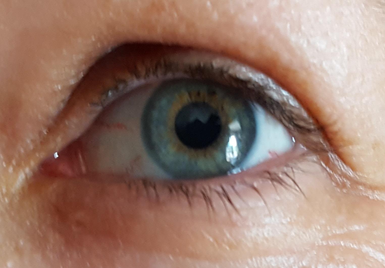 que es papiloma en el ojo