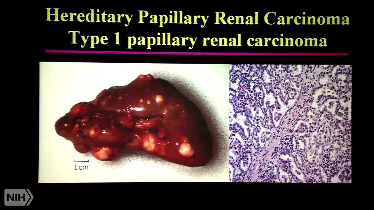 renal cancer genetic hpv anorectal cancer