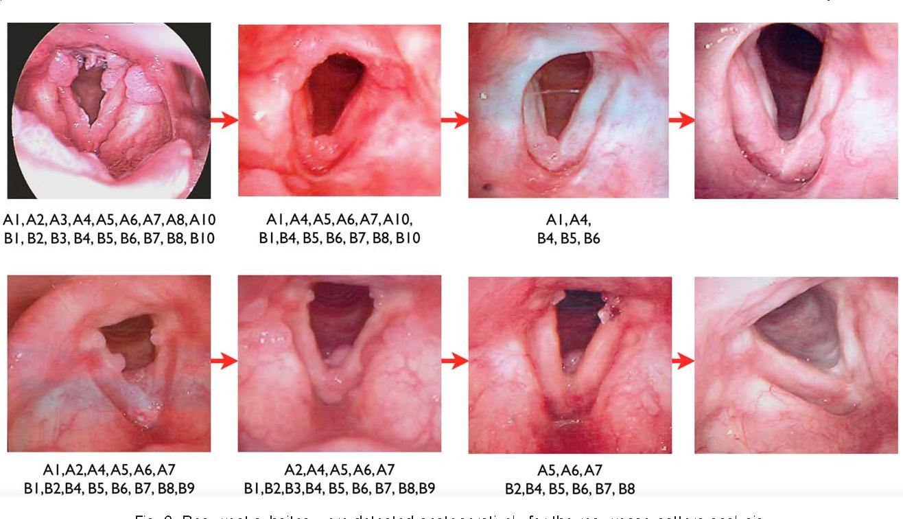 respiratory papilloma laser)