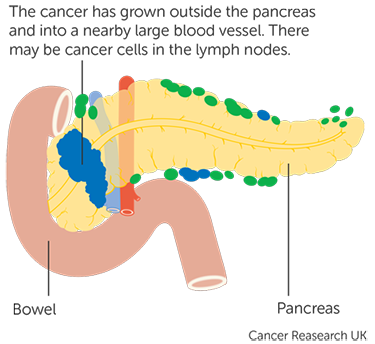 sarcoma cancer stage 3)