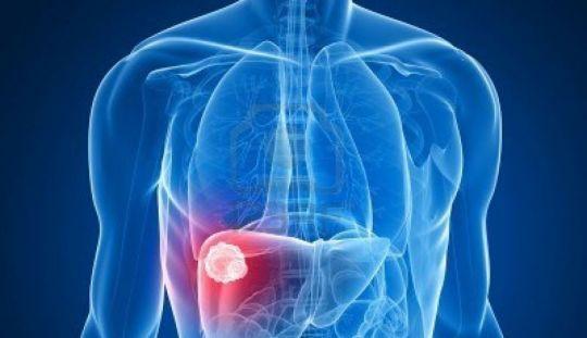 Cancer osos - Tot ce trebuie sa stii | Cancer